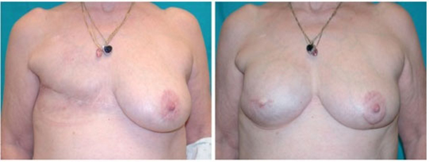 Breast Reconstruction Boston