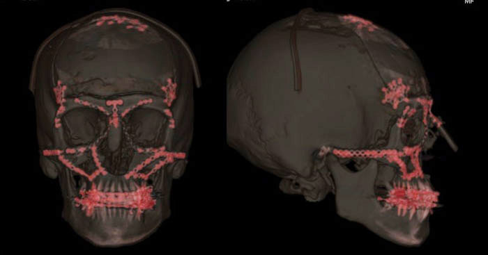 Craniofacial Surgery Boston